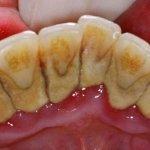Как удалить зубной налет в домашних условиях самостоятельно