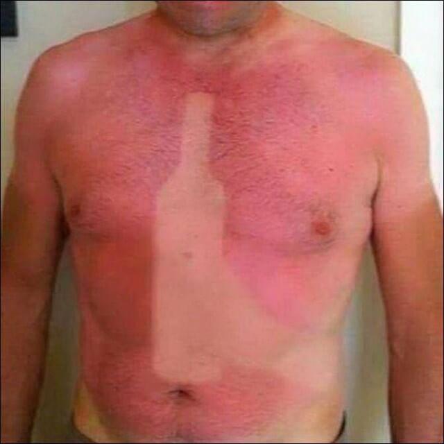 сильно сгорела кожа на солнце