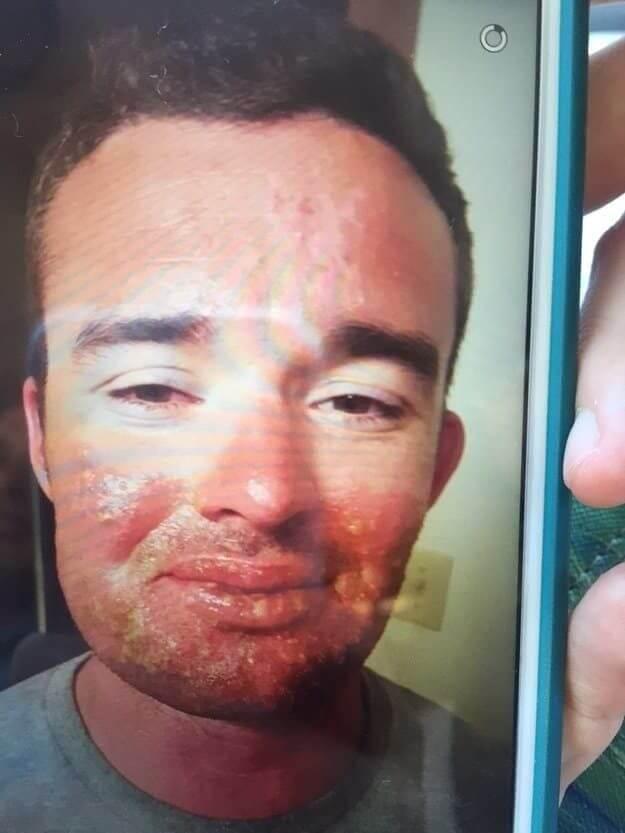 термические повреждения кожи ожоги