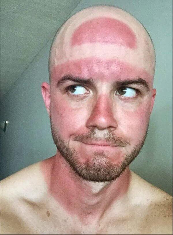 сильно загорел на солнце